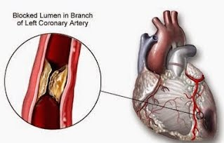 Ischemic Heart Disease - The Cardio Research Web Project